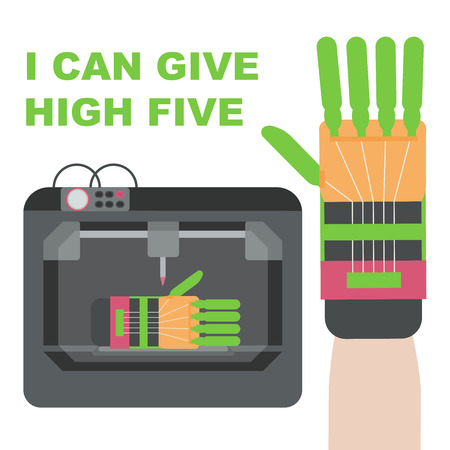 high five: Prosthetic hand made by 3d printer. Plastic hand can give high five.