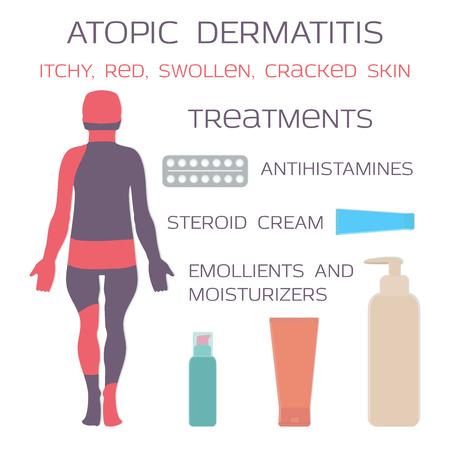 Atopic dermatitis, eczema. Medication is antihistamine tablets and steroid creams. Vector illustration. Иллюстрация