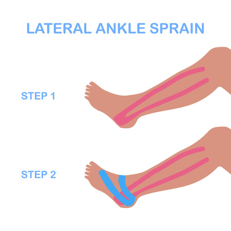 sprain: Lateral ankle sprain. Correct kinesiology taping. Vector illustration. Illustration