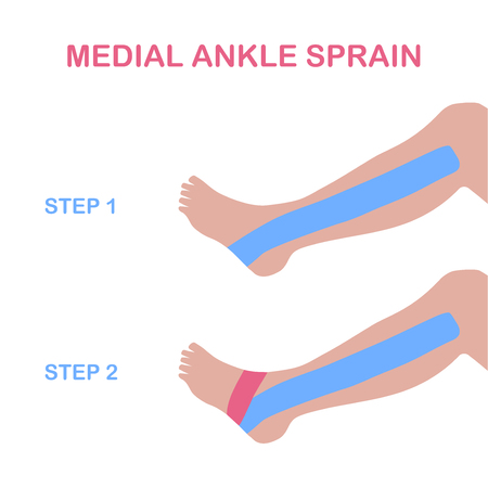 tarsal: Medial ankle sprain. Correct kinesiology taping. Vector illustration.