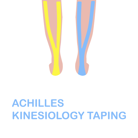 calcaneus: Achilles kinesiology taping. Correct kinesiology taping. Vector illustration.