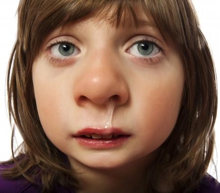 rinnande näsa - kall - sjuk liten flicka