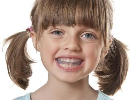 little girl with plastic braces isolated on white photo