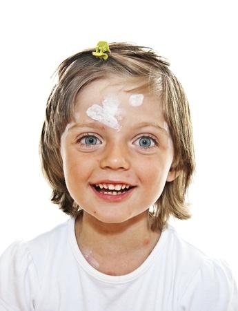 sarpullido: niña con viruela