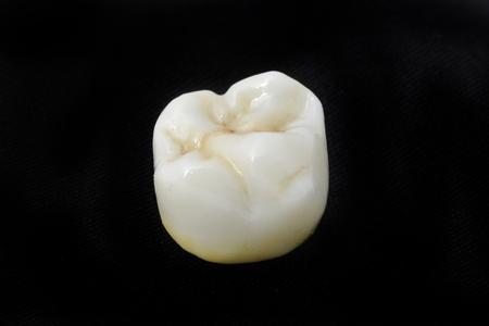 dental laboratory: dientes de cer�mica en el laboratorio dental