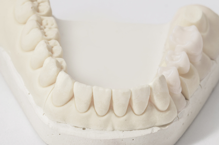 dental laboratory: ceramic tooth in dental laboratory Stock Photo