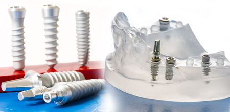 dental implants in dental model