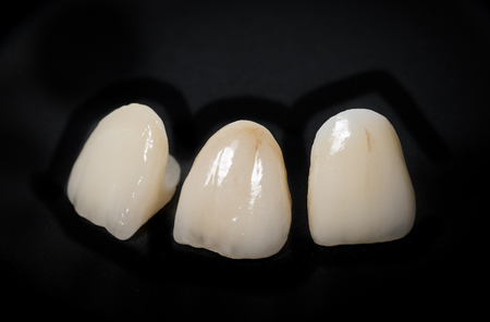 laboratorio dental: ceramic crowns in dental laboratory
