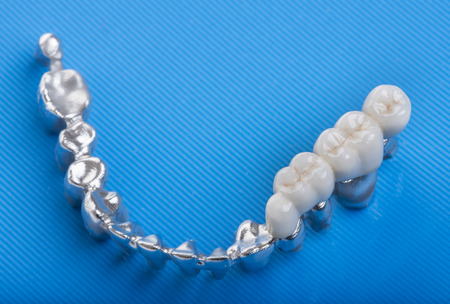 artificial model: ceramic crowns in dental laboratory