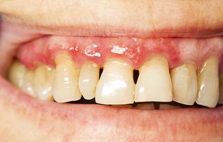 tanden met parodontitis close-up