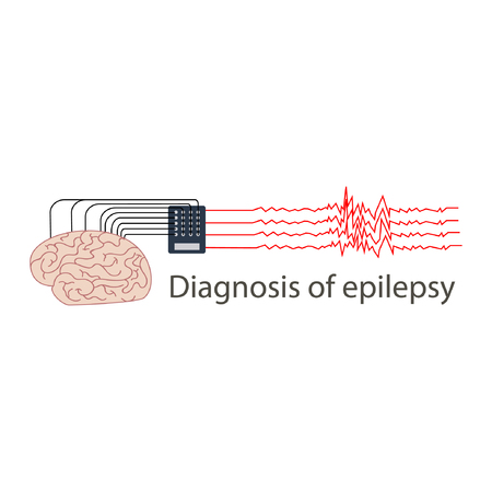 Diagnosis of the brain. Neuronal activity is transmitted by electrodes