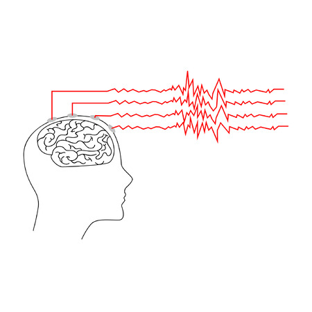 Silhouette of a human head and brain with neural activity. Concept of the epilepsy and epileptic seizure Illustration