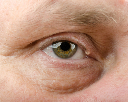 Epidermal cyst on right upper eyelid of middle aged man Stock Photo