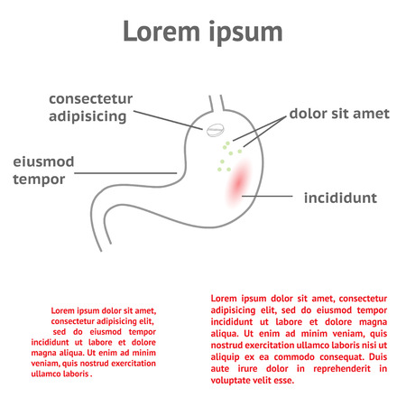 gastric colic: treatment of stomach ache. Illustration template with space for text Illustration