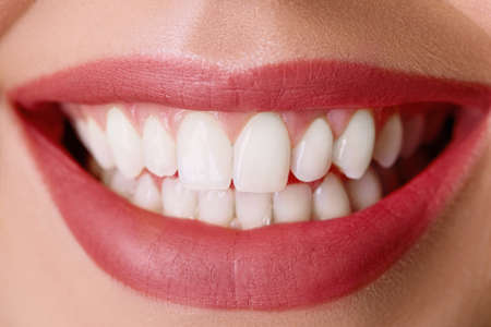 Closeup of smile with white healthy teeth.Teeth whitening. Dental care. Lips care