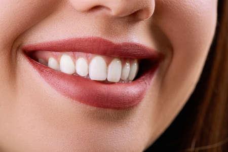 Closeup Woman smile. Teeth whitening. Dental care. Restoration concept. Lips Banco de Imagens