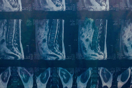 Medische afbeeldingen van de wervelkolom, gemaakt met een tomograaf. Wervelkolom vanuit verschillende hoeken. De juiste diagnose stellen.