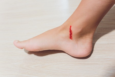 The leg is wound with bleeding caused by scratching.