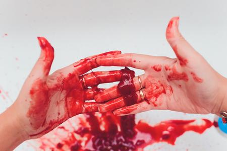 Blutige Wunden an der Hand bluten auf weißem Hintergrund.