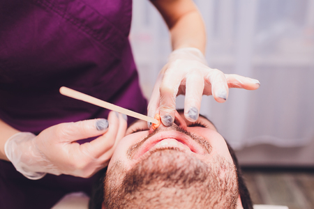 Hair removal. Mans face sugaring epilationsy ellow color, in cosmetology on the couch. hair removal inside the nose. Archivio Fotografico