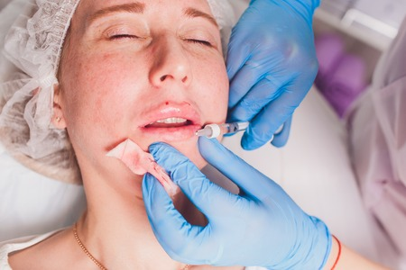 The doctor cosmetologist makes Lip augmentation procedure of a beautiful woman in a beauty salon.Cosmetology skin care. Stok Fotoğraf