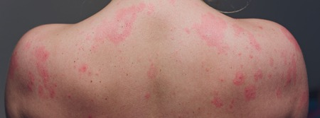 Nahaufnahme Allergieausschlag, Rundum-Rückansicht des Menschen mit Dermatitis-Problem von Hautausschlag, Allergieausschlag und Gesundheitsproblem Standard-Bild