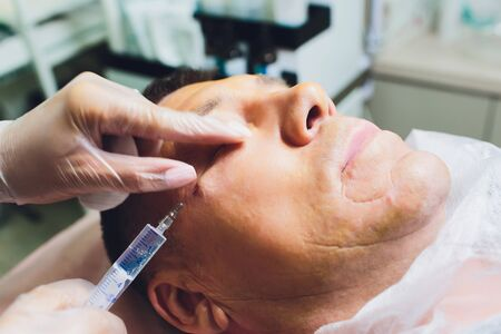 Close-up of procedure for face lifting PDO Suture operation, face lifting surgery. innovative technique of New thread lift, NovaThreads and Silhouette InstaLift mens bags under the eyes.