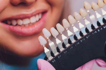 The dentist comparing patients teeth shade with samples for bleaching treatment.