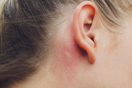Allergic skin reaction on the man behind the ear caused by insects staphylinidae, burns on the skin.