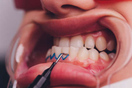 Close-up portrait of a female patient visiting dentist for teeth whitening in clinic,Teeth whitening procedure.