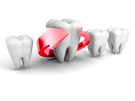 carious cavity: Dental Health Concept. Red Arrow Around Tooth. 3d Render Illustration