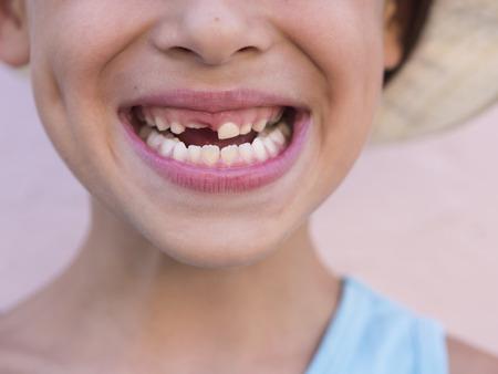 niños riendose: retrato de un niño sin dientes feliz