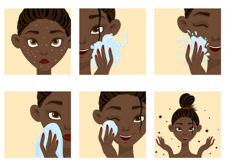 Dark-skinned female face with acne cure steps. Cartoon style. Vector illustration