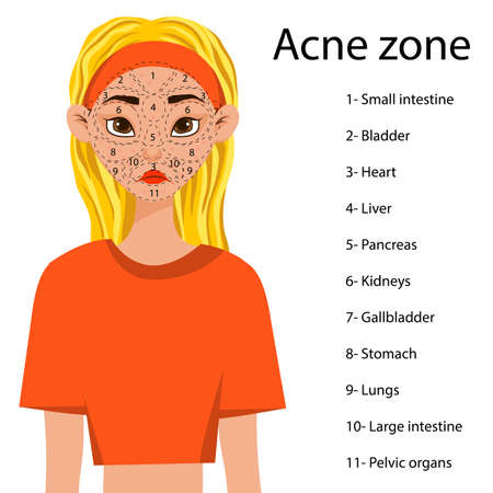 Girl with a scheme of problem areas on her face with a predisposition to acne. Cartoon style. Vector illustration Иллюстрация