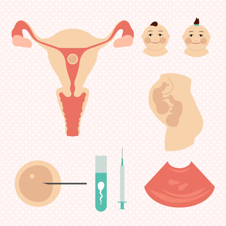 in vitro: IVF  in vitro fertilisation   Twins Illustration