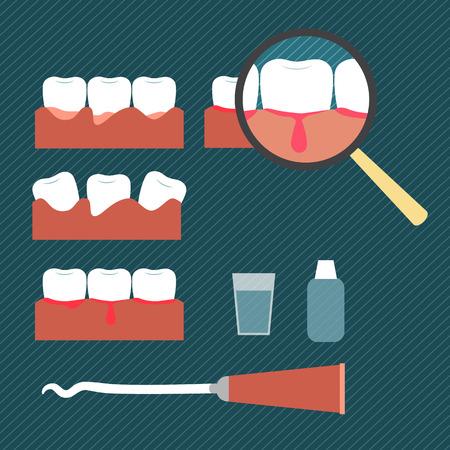 ミニマリズムのフラット スタイルの歯肉疾患を示す図