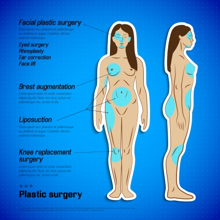 arm muscles: Human  body infographics  Vector Illustration, eps10, contains transparencies