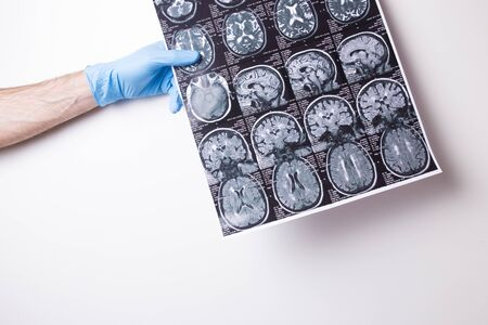 MRI image on a white background. Doctors gloved hand holds a snapshot.