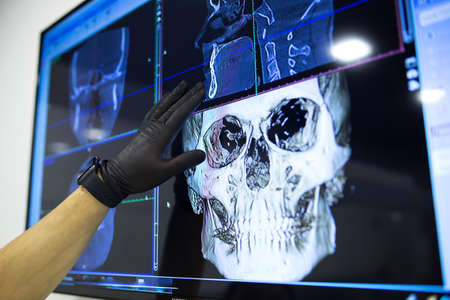 The male hand of the dentist on the monitor screen shows the jaw. Фото со стока