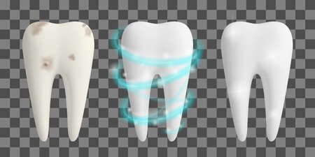 Clean and dirty tooth. Teeth Whitening process. Dental health design concept. Realistic vector illustration.