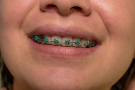 TEETH OF YOUNG WOMAN WITH ORTHODONTIC TREATMENT AND AQUA BLUE BRACES