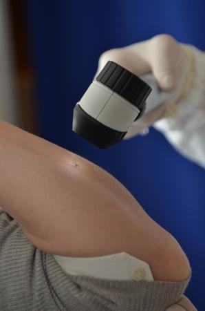 Mole diagnostic