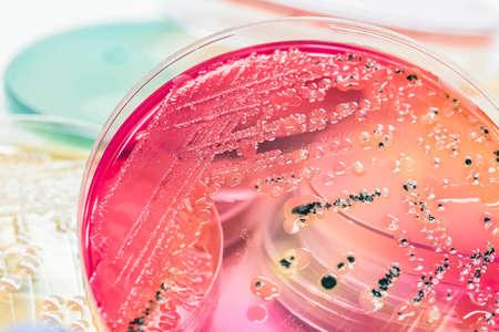 El cultivo de colonias bacterianas en medios de agar selectivo (agar SS) contiene pequeños granos ligeros. Centrarse en toda la superficie de agar.