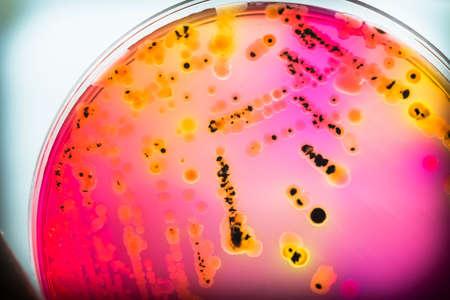 Bacterial colonies culture on  selective agar media(SS agar) contains small light grains.