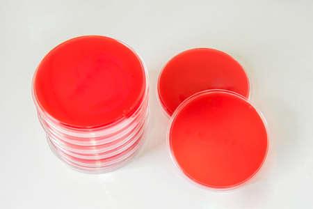 Blood agar (BA agar)-Selective media for bacteria growth.