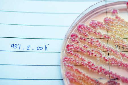 Escherichia coli colonies as test on MacConkey agar plate. Focus on all agar surface in experimental laboratory Hospital. Reklamní fotografie