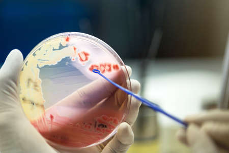Close up the media plate on hand medical technicians working on bacterial culture and drug resistance of pathogens in laboratory.