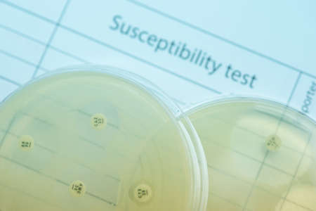 Subsensitivity test on Muler plate contains small light grains. Focus on all agar surface.