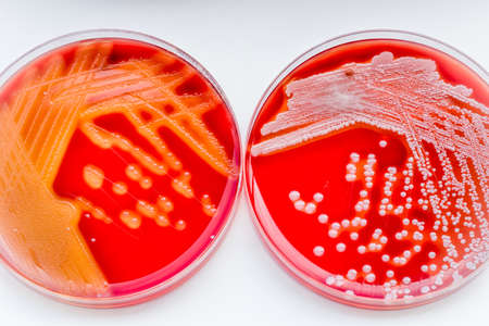 Comparison betaween Staphylococcus aureus and Streptococcus pyogenes: Gram-positive cocci, betahemolysis and Alpha hemolysis on blood agar. Stock Photo