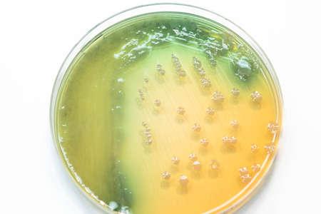 Bacterial colonies culture growth on MacConkey agar (Pseudomonas aeruginosa)contains small light grains. Focus on all agar surface.
